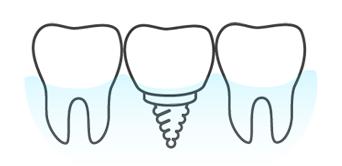 Implantes dentales en toledo